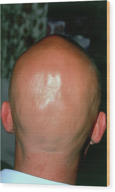 Alopecia Areata (hair Loss) Over The Scalp Of Man Wood Print by Dr P. Marazzi/science Photo Library