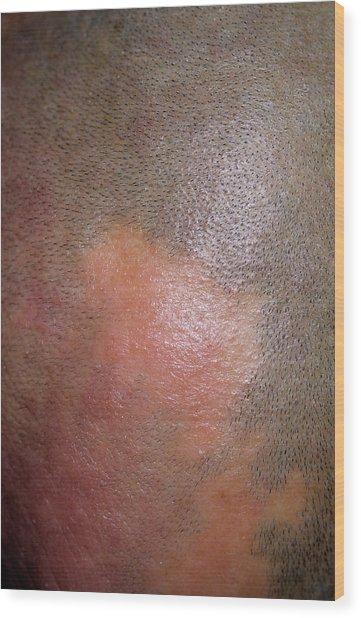 Alopecia Wood Print by Dr P. Marazzi/science Photo Library