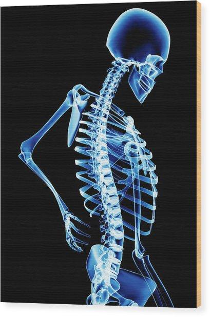 Back Pain Wood Print by Pasieka