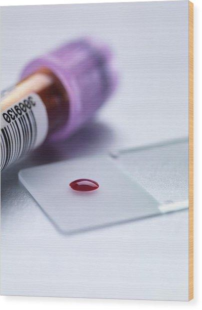Blood Test Wood Print