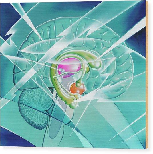 Brain In Epilepsy Wood Print