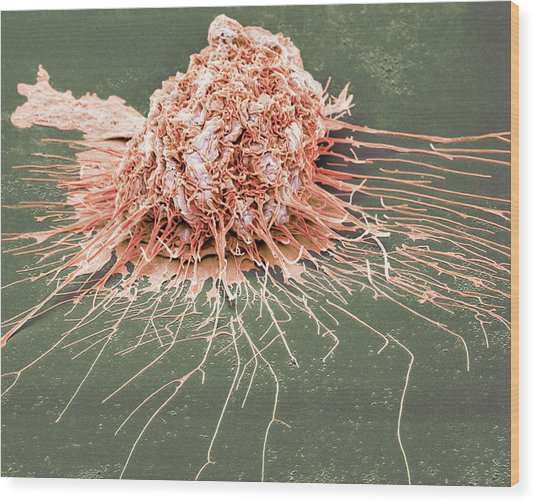 Bronchial Epithelium Wood Print by Steve Gschmeissner