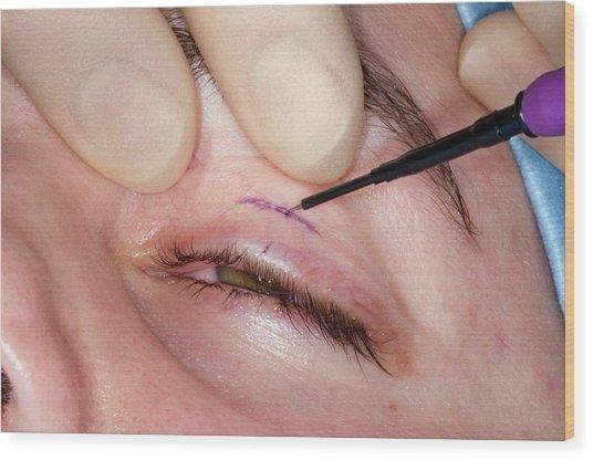 Eyelid Surgery Wood Print