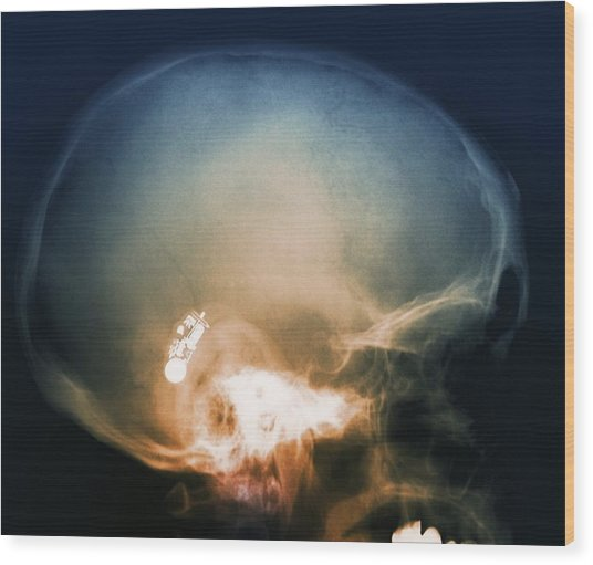 Hearing Aid, X-ray Wood Print by Science Photo Library
