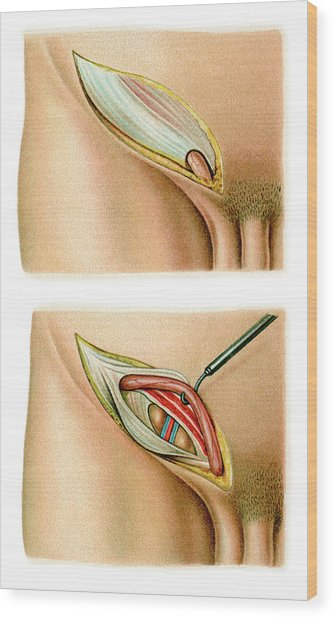 Inguinal Hernia Surgery Wood Print by Science Photo Library
