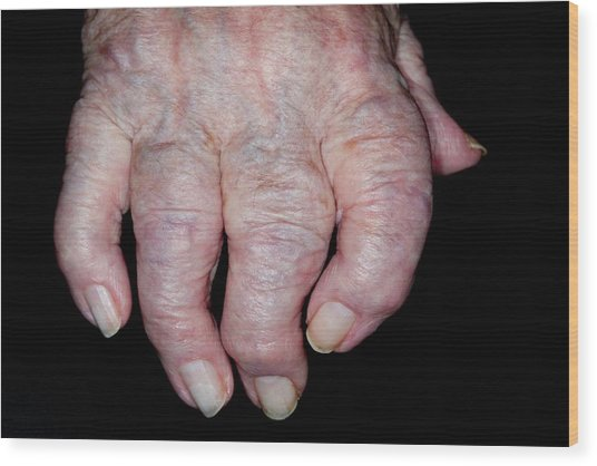 Osteoarthritis Of The Hand Wood Print by Dr P. Marazzi/science Photo Library