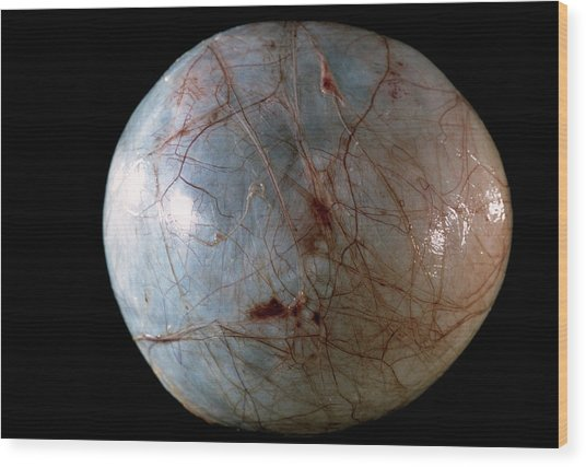 Ovarian Cyst Wood Print by Cnri/science Photo Library