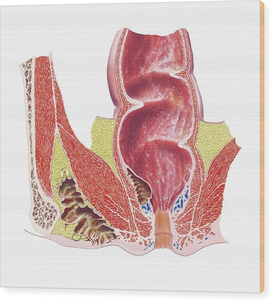 Rectum And Anus Artwork Photograph By Science Photo Library