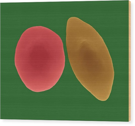 Sickle Cell And Normal Red Blood Cell Wood Print