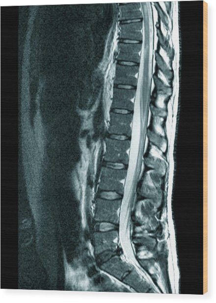 Spine In Multiple Sclerosis Wood Print by Zephyr/science Photo Library