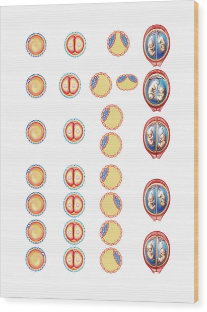 Types Of Twin Wood Print by Asklepios Medical Atlas