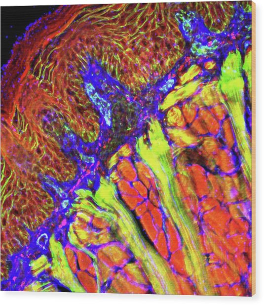 Tongue Tissue Wood Print by R. Bick, B. Poindexter, Ut Medical School