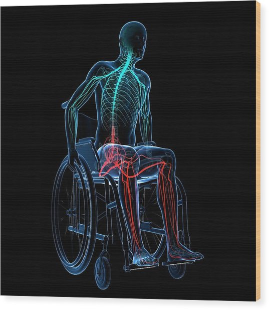 Man In A Wheelchair Wood Print by Sciepro/science Photo Library