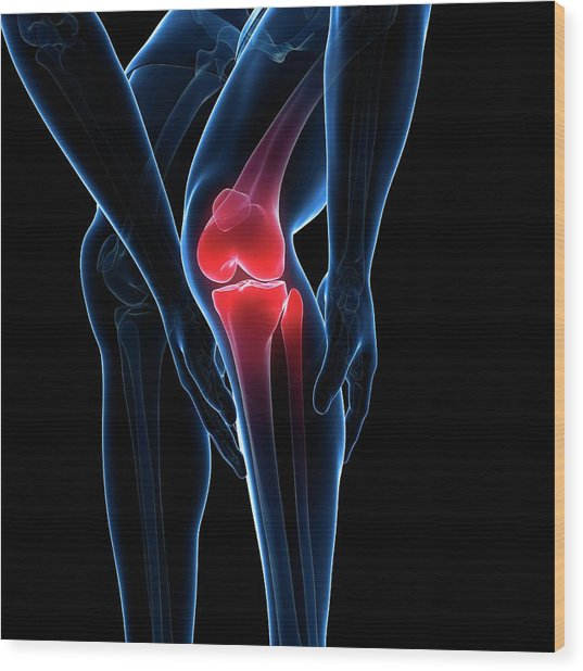 Painful Knee Wood Print by Sciepro/science Photo Library