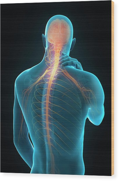 Human Neck Pain Wood Print by Sebastian Kaulitzki/science Photo Library