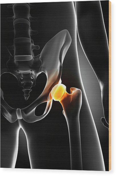 Hip Pain Wood Print by Sciepro/science Photo Library