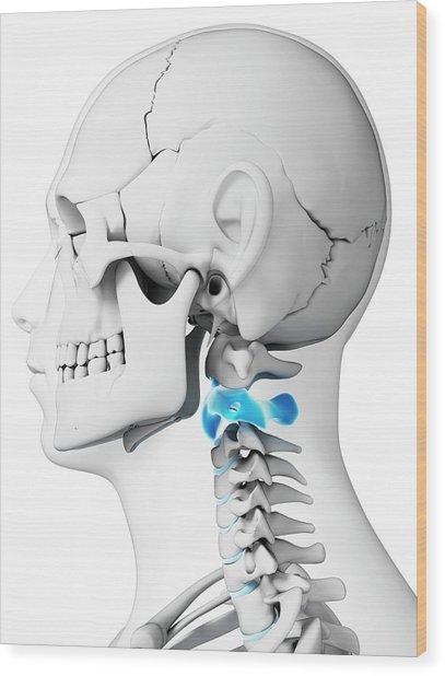Human neck bones photograph by sebastian kaulitzki human neck bones wood print by sebastian kaulitzki ccuart Choice Image