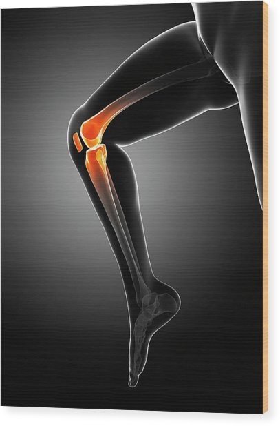 Knee Pain Wood Print by Sciepro/science Photo Library