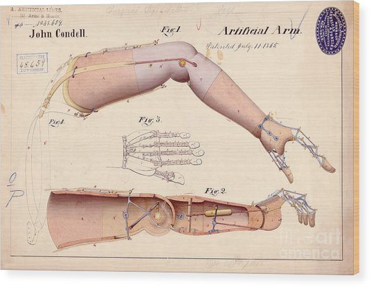 1865 Artificial Limbs Patent Drawing Wood Print
