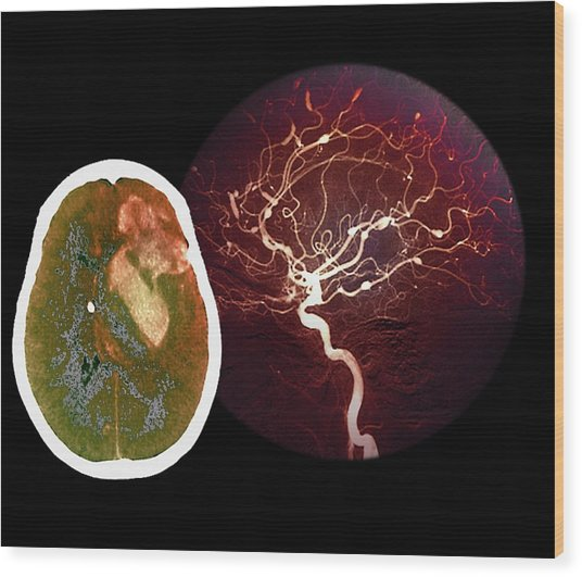 Brain Haemorrhage From Aneurysm Wood Print by Zephyr/science Photo Library