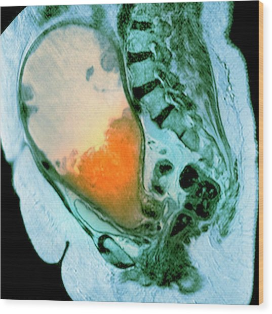 Cancer Of The Uterus Wood Print by Du Cane Medical Imaging Ltd/science Photo Library