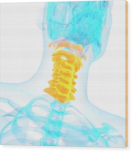 Cervical Spine Wood Print by Sebastian Kaulitzki
