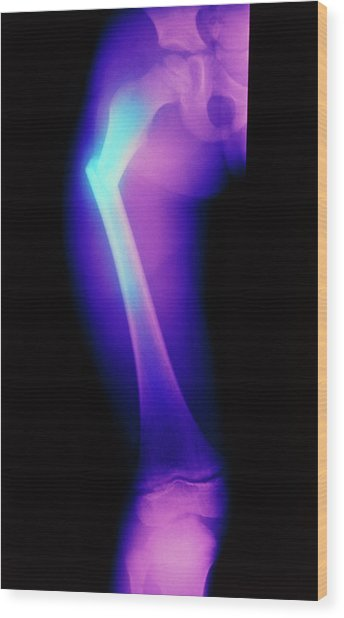 Coloured X-ray Image Of A Child's Broken Femur Wood Print by Science Photo Library