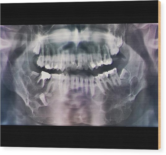 Jaw Cancer (ameloblastoma) Wood Print by Zephyr/science Photo Library