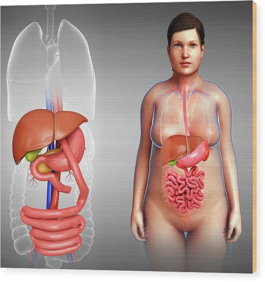 Gastric Bypass Wood Print by Pixologicstudio/science Photo Library