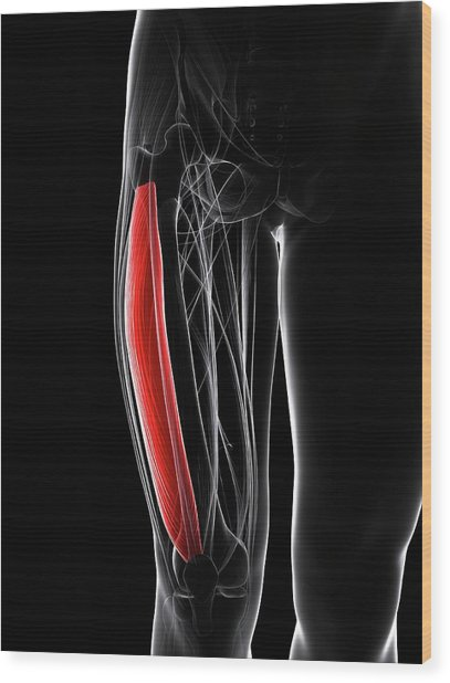 Thigh Muscle Wood Print by Sciepro/science Photo Library