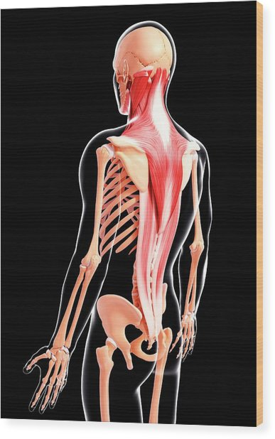 Human Musculature Wood Print by Pixologicstudio/science Photo Library