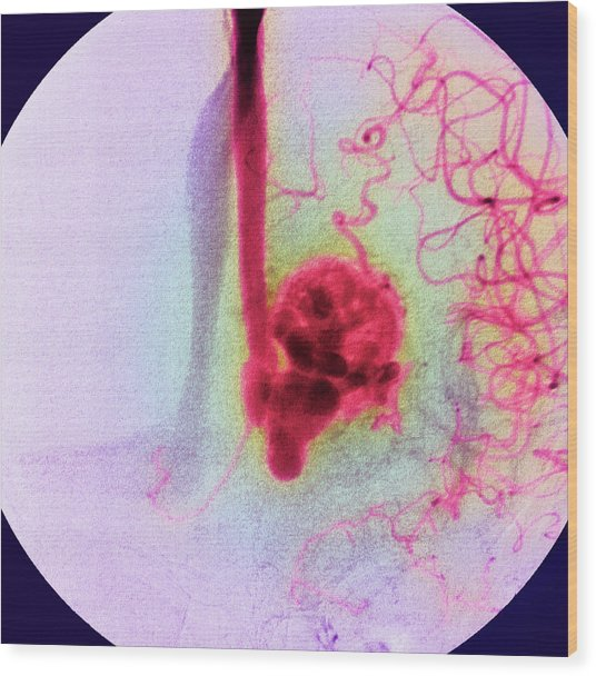 Blood Vessel Tumour Wood Print by Simon Fraser/rnc, Newcastle/science Photo Library