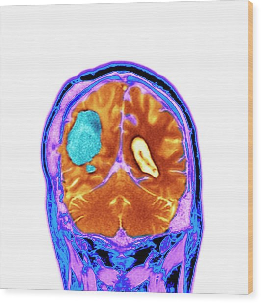 Brain Cancer After Surgery Wood Print by Dr P. Marazzi