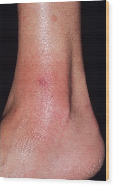 Cellulitis Wood Print by Dr P. Marazzi/science Photo Library