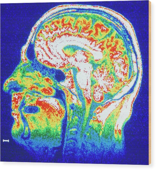 False-colour Nmr Scan Of The Head Wood Print by Cnri/science Photo Library