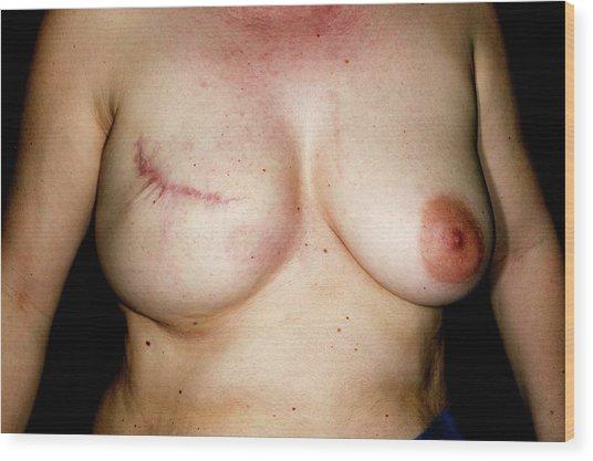 Nipple Reconstruction Surgery Wood Print