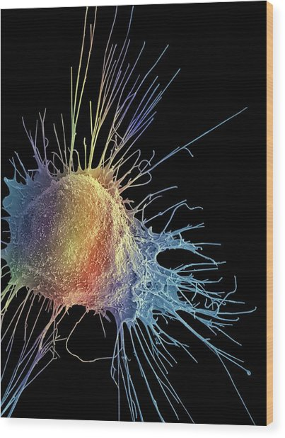Prostate Cancer Cell Wood Print by Steve Gschmeissner