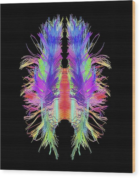 White Matter Fibres And Brain, Artwork Wood Print by Science Photo Library