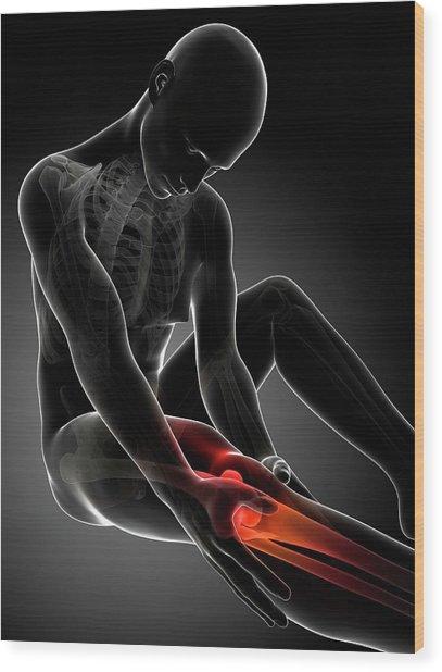 Human Knee Pain Wood Print by Sebastian Kaulitzki