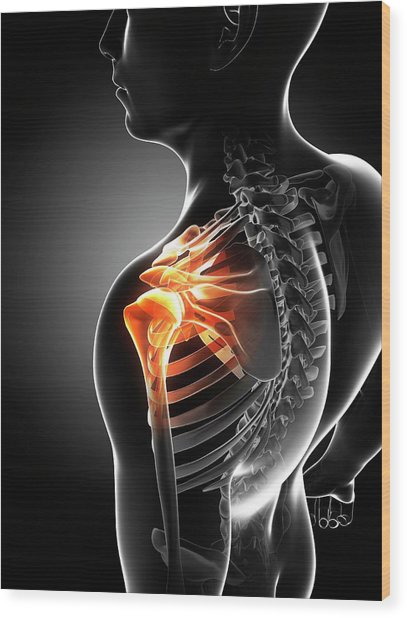 Shoulder Pain Wood Print by Sciepro/science Photo Library