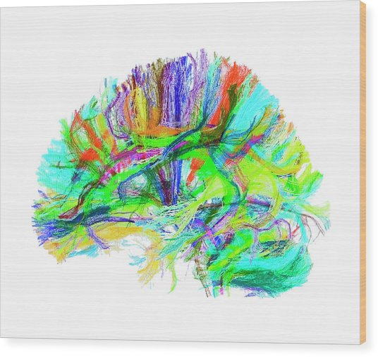Advanced Mri Brain Scan Wood Print by Philippe Psaila/science Photo Library