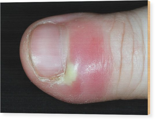 Paronychia Infection Of The Thumb Wood Print by Dr P. Marazzi/science Photo Library