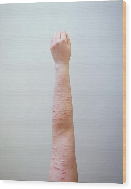 Scarring Caused By Self Harm Wood Print by Joti/science Photo Library