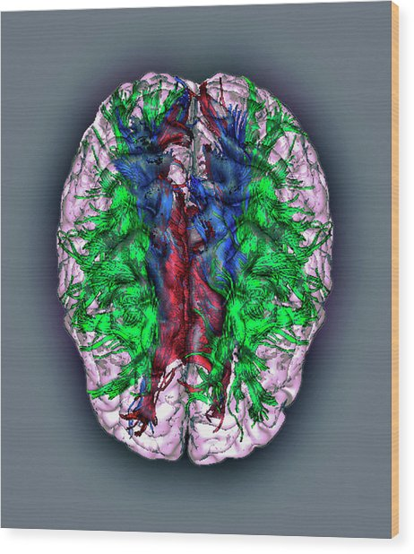White Matter Fibres Wood Print by Zephyr/science Photo Library