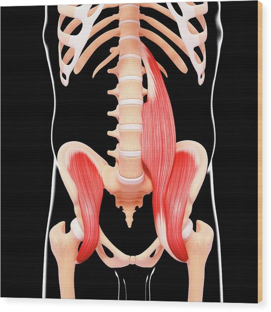 Human Hip Musculature Wood Print by Pixologicstudio/science Photo Library