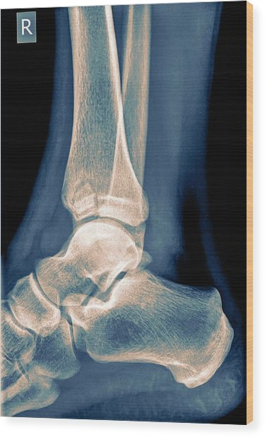 Ankle X-ray Wood Print by Photostock-israel