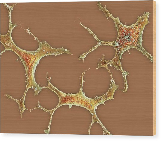 Breast Cancer Cells Wood Print by Science Photo Library