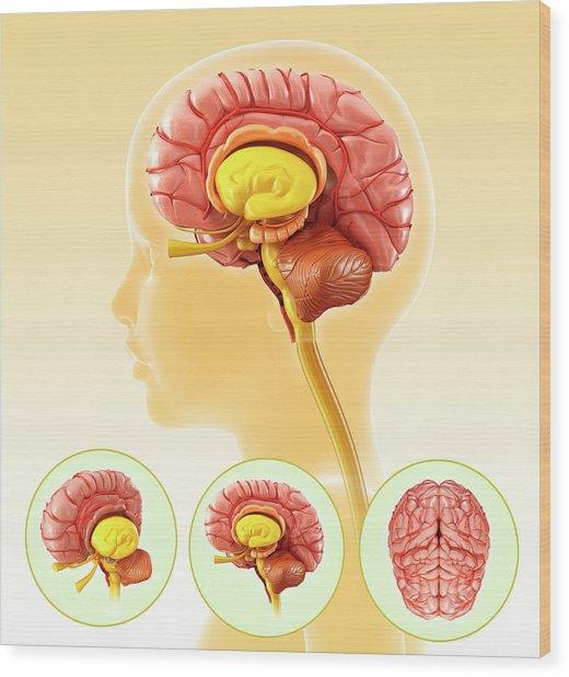Child's Brain Anatomy Wood Print by Pixologicstudio/science Photo Library
