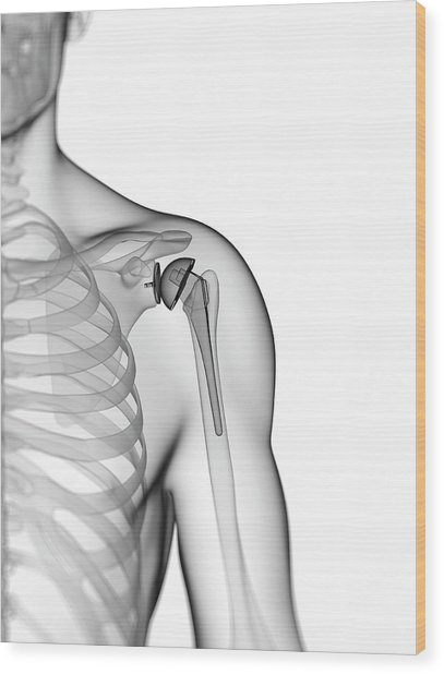 Human Shoulder Replacement Wood Print by Sebastian Kaulitzki