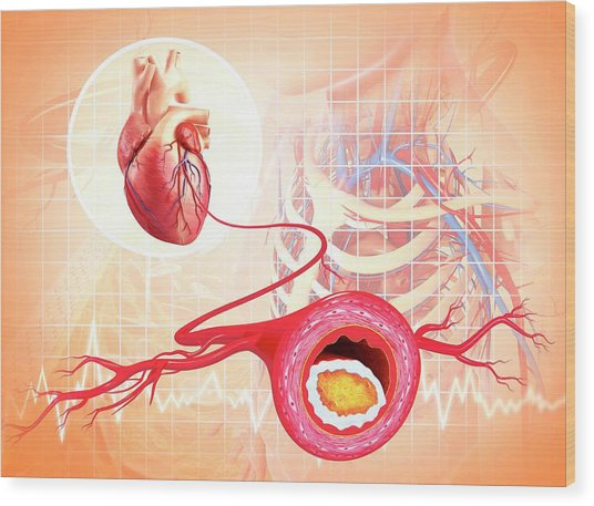 Atherosclerosis Wood Print by Pixologicstudio/science Photo Library